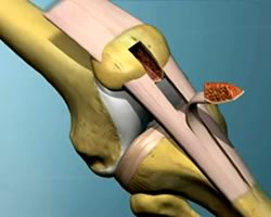 Animation of ACL Reconstruction